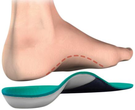 Flat Foot Problem Explained in Detail